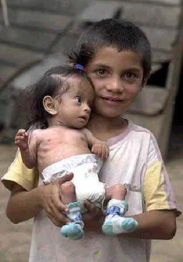 La desnutrición infantil una de las principales causa de pobreza